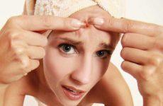Что нужно знать об акне при уходе за кожей