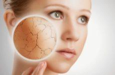 Как помочь сухой коже лица: программа ухода